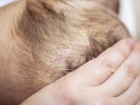 Łojotok - przyczyny i naturalne metody leczenia. Jak się pozbyć łojotoku?