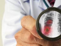 Jak radzić sobie psychicznie z epidemią koronawirusa?