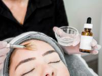 Kwas migdałowy – cudowne antidotum na trądzik?