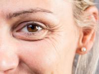 Worki po oczami – skąd się biorą i jak się ich pozbyć?