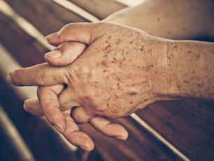 Plamy starcze ‒ przyczyny, objawy i leczenie plam starczych
