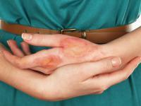 Oparzenia – jak należy je pielęgnować, a czego absolutnie robić nie wolno!
