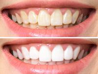 Wybielanie zębów – w domu czy w gabinecie dentystycznym?