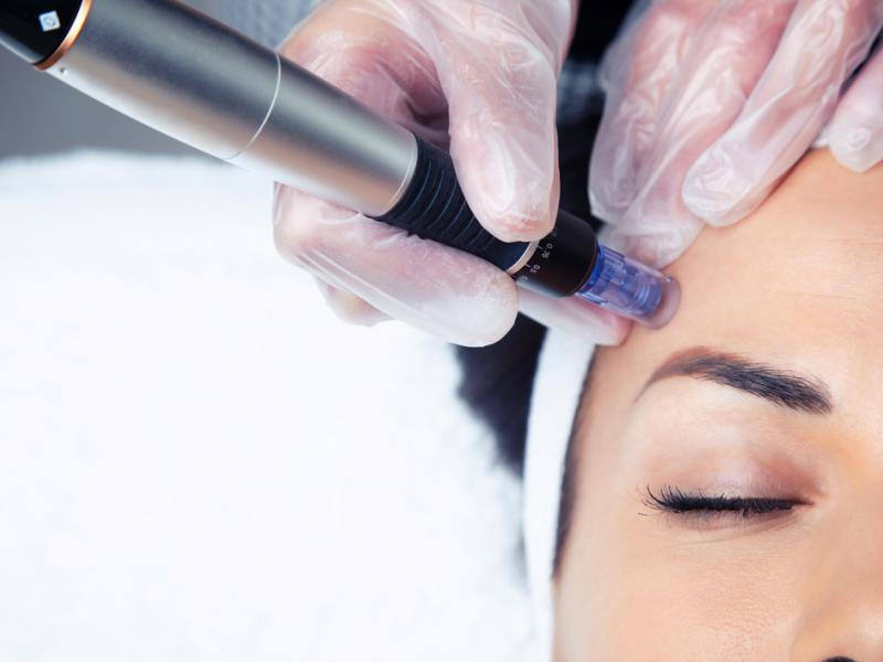 Dermapen wykorzystywany do odmładzania twarzy. Źródło: shutterstock