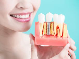 Implanty zębów – czyli ile kosztuje piękny uśmiech?
