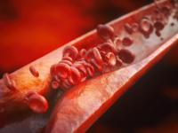 Choroba, której nie wolno bagatelizować. Co powinniśmy wiedzieć o miażdżycy?