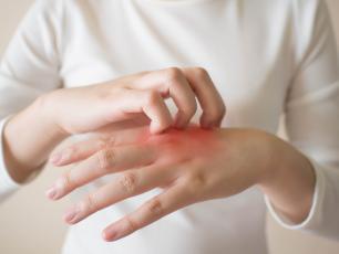 Jak łagodzić alergie skórne naturalnymi sposobami?