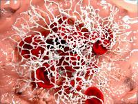 Fibrynogen - normy, opis i przebieg badania. Co oznacza podwyższony fibrynogen?