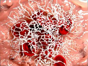 Fibrynogen – badanie, które pomaga rozszyfrować krzepliwość krwi